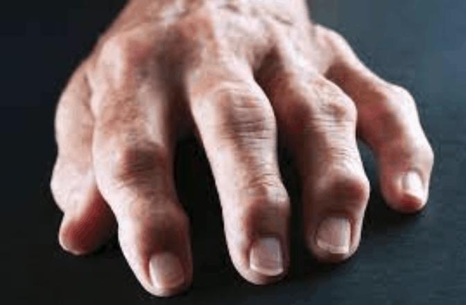 vegan health benefits arthritis pain relief plant based diet